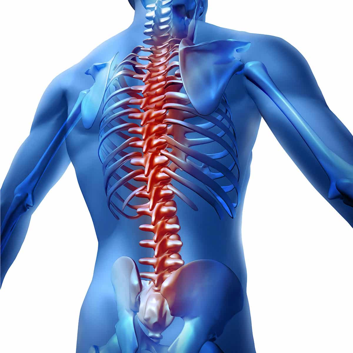 coloana vertebrala si durerile de spate- osteomedicare